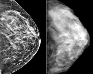 brca world - breast density